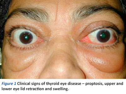 Thyroid Eye Disease A Brief Overview Sengkang General Hospital